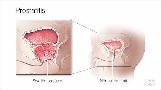 Prostatitis szexuális impotencia