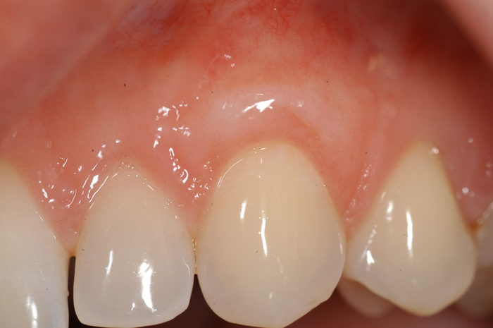 Esthetic Gingival Graft - After