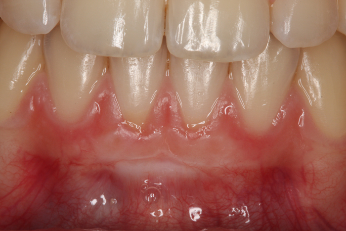 Functional Gingival Graft - After