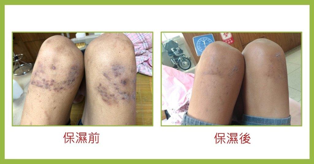 透析病人皮膚保養-乾燥與濕潤皮膚