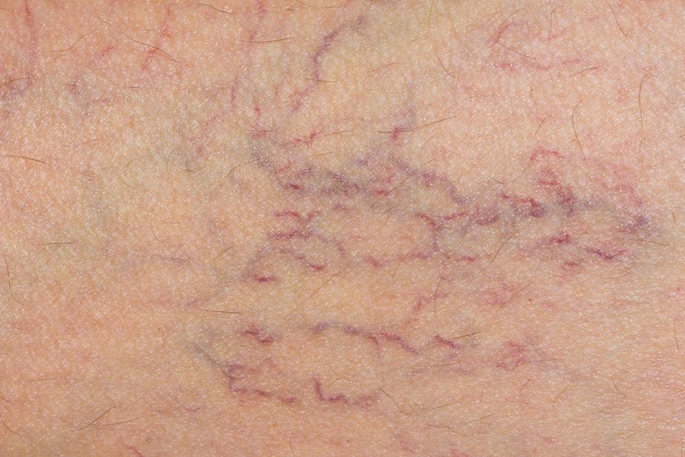 Varicose Vein Treatment experts in LA