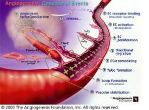 angiogenesis. 300x221 Cancer, Pain Relief & Diet: Ron Rosedale and Shelley Schlender