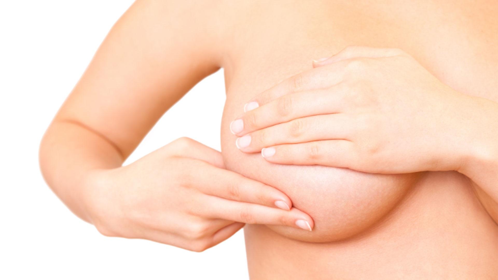 Postoperatorio de una mamoplastia