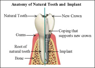 Missing front teeth 5 ways to replace front teeth dr gurs sehmi the advantage of this treatment is that it is not reliant on any other tooth health unlike any bridge option and the success rates are very high compared ccuart Choice Image