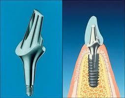 ankylos implant