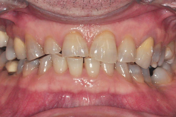 Advanced tooth wear caused by a bite interference