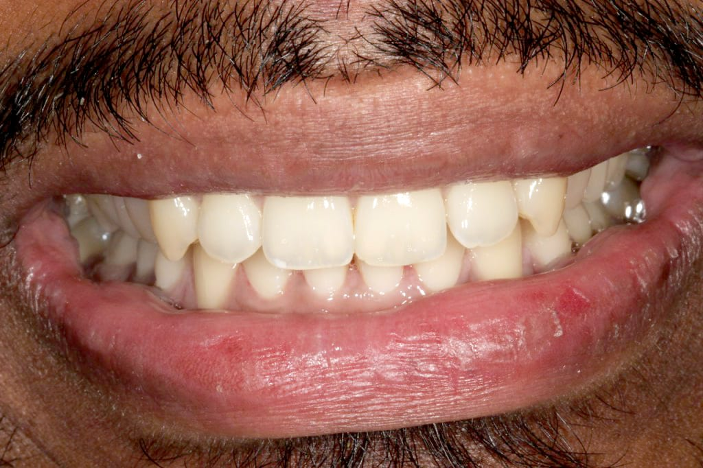 Ceramic Brace Treatment, Lingual Brace Treatment, Dr Gurs Sehmi London