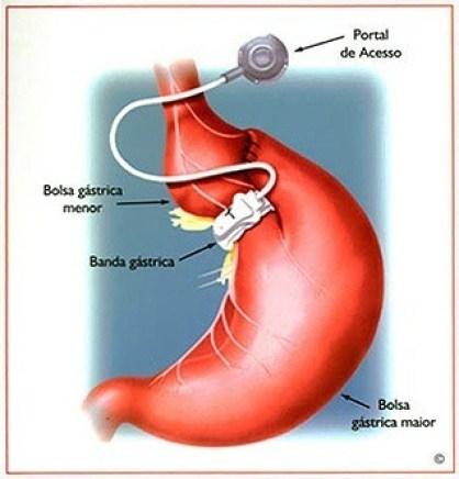 gastroplastia
