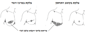 gynecomastia 2