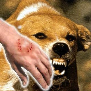 被咬傷我不怕—狂犬病對策