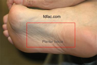 plantar_fascia