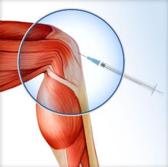PRP (Platelet Rich Plasma) Effective Treatment for Knee Osteoarthritis Study Shows