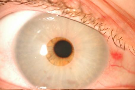 Aspecto in situ del dispositivo que cambiaba el color del ojo