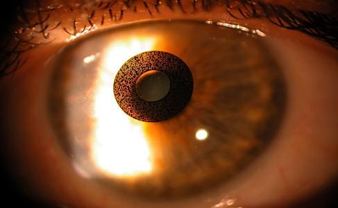 Aspecto del ACI Corneal Inlay en el ojo