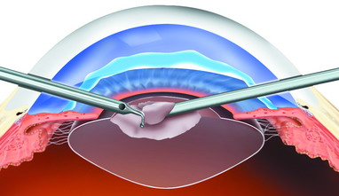 Las Clínicas Pirvadas operan Cirugía de Cataratas