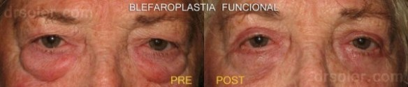 Blefaroplastia funcional