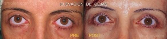 Elevación de cejas