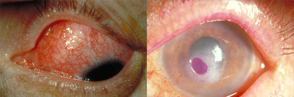 Los problemas que puede causar el oculolinctus van de una simple conjuntivitis a una úlcera corneal