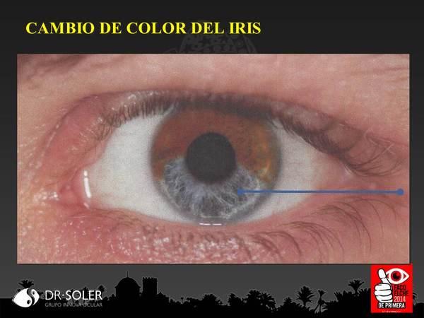 """El iris marrón tiene pigmento en la superficie del iris lo que no ocurre con los iris de color azul-gris. Es ahí donde actuarían los láser experimentales como el """"Stroma"""""""