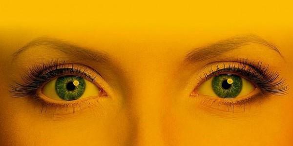 Biokinesis ojos azules antes y despues de adelgazar