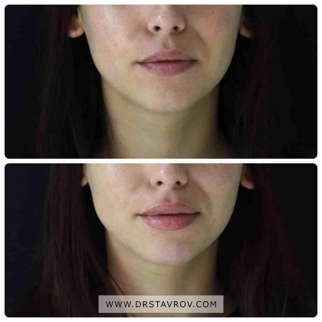 Хиалуронова киселина в устните