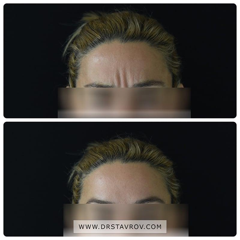 Ботокс на лице - корекция на гневна бръчка