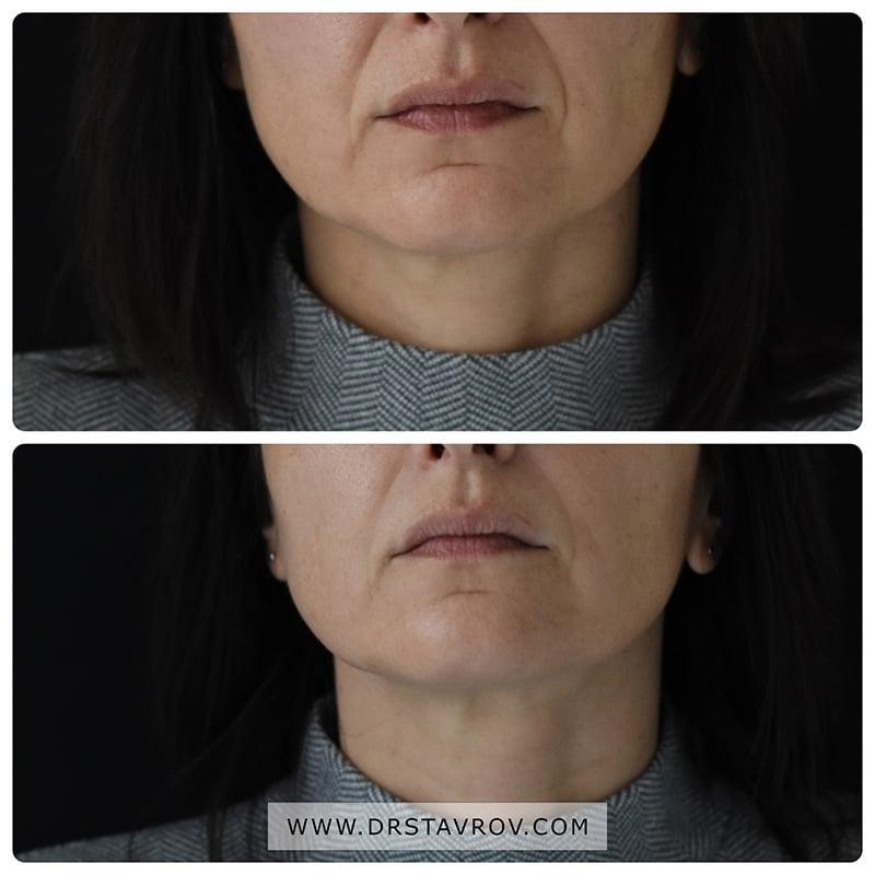 Корекция на назолабиални бръчки