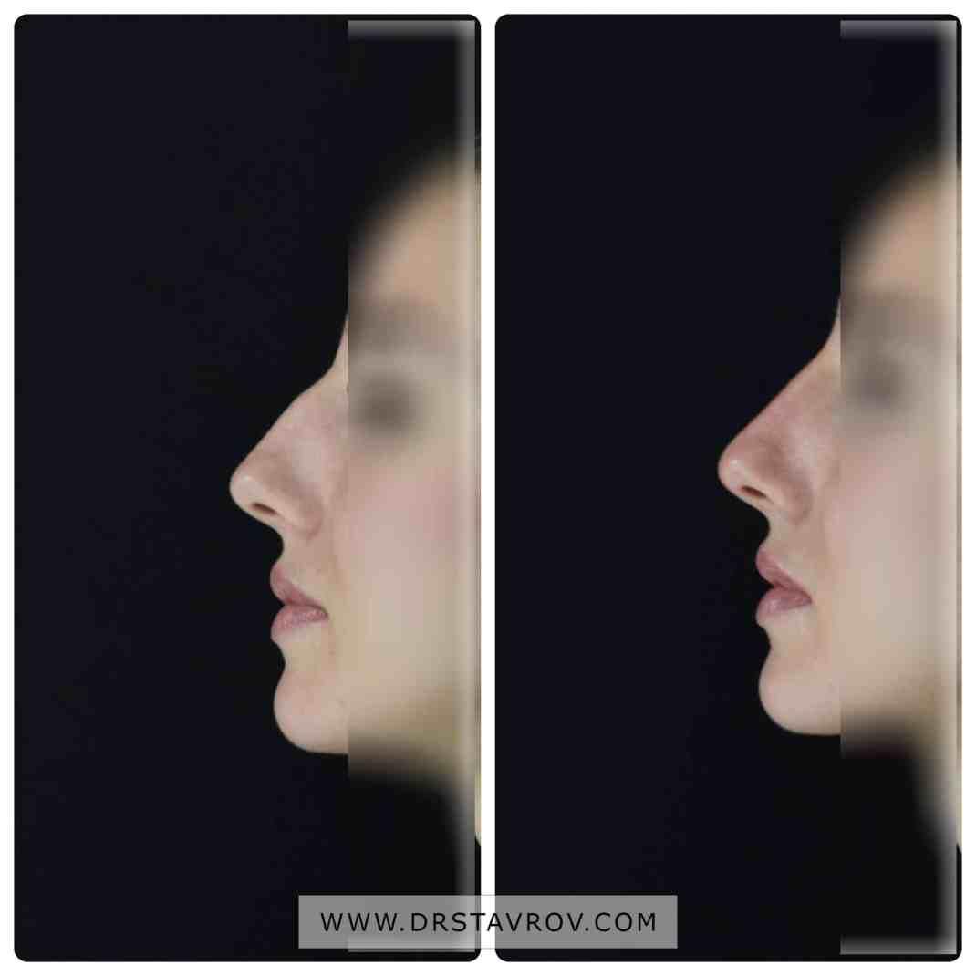 Корекция на нос с филъри