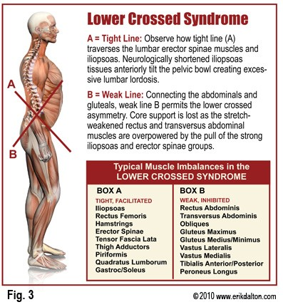 lower-cross-syndrome