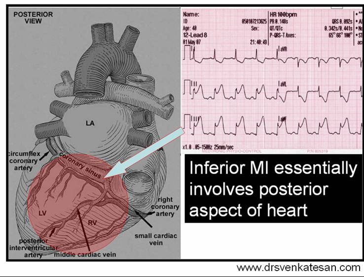 inferior MI ECG
