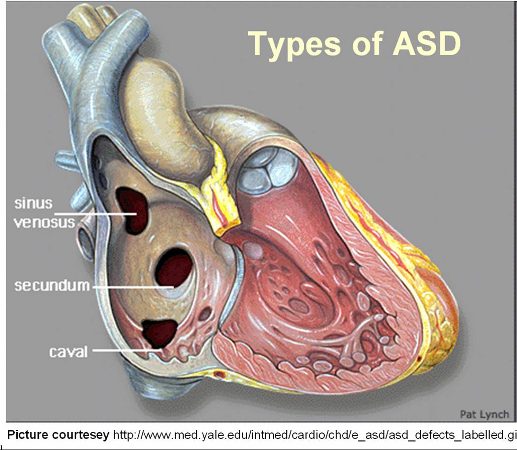 SVC TYPE OF ASD | Dr.S.Venkatesan MD  Sinus Venosus Asd
