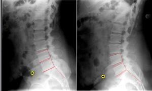 Lumbar Spinal Decompression Case Studies