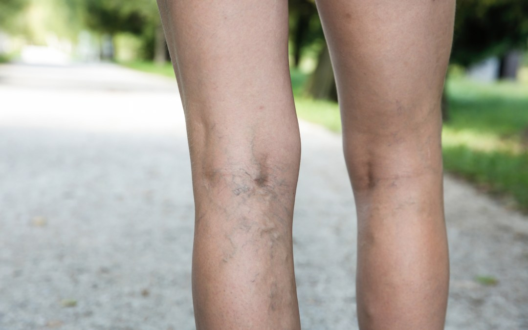 A Homeopathic Medicine Approach for Varicose Veins