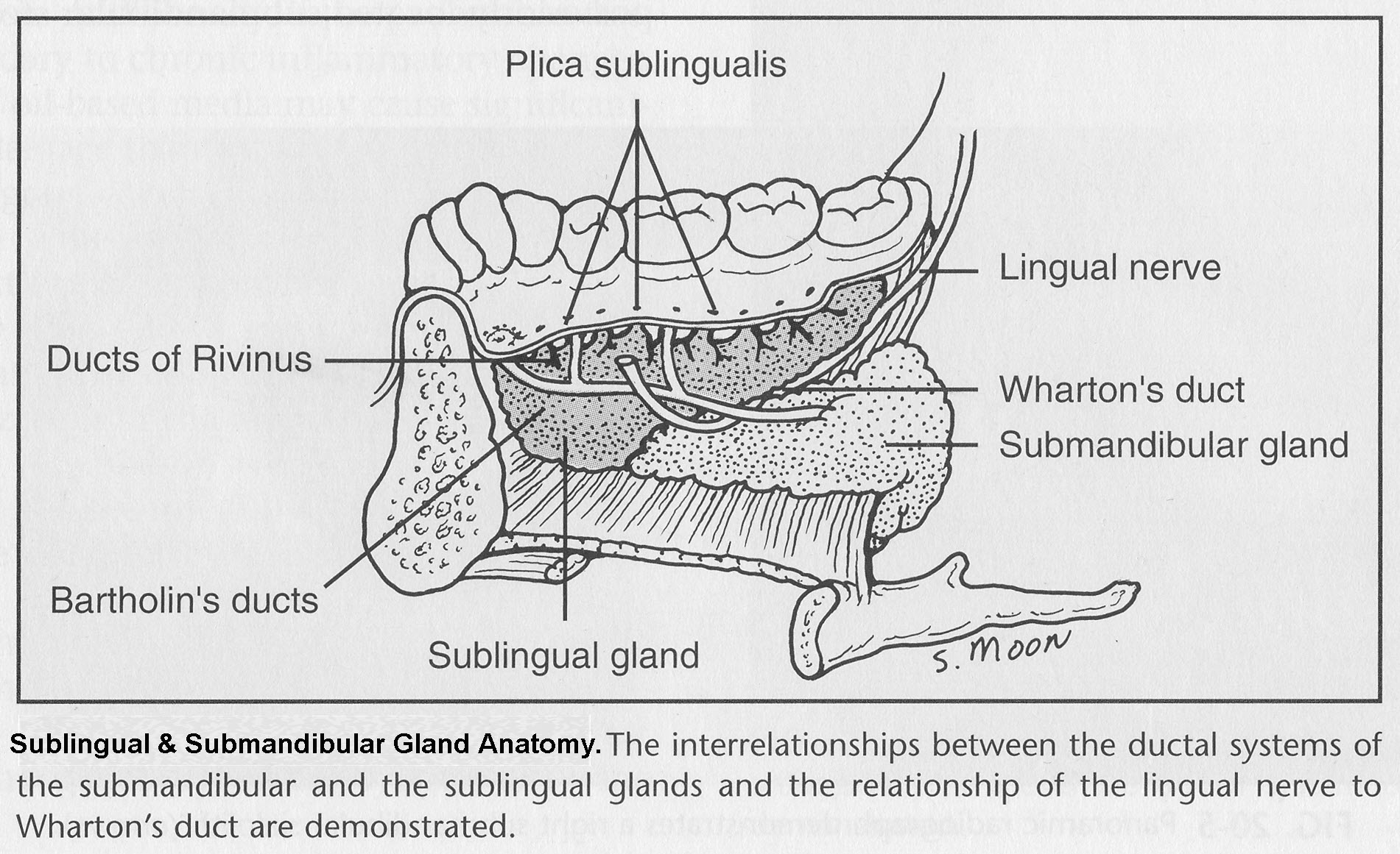 Sublingual Gland Causes Symptoms Treatment Sublingual Gland