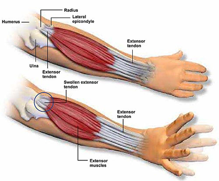 Forearm Pain A New Treatment For An Old Problem Drum Magazine