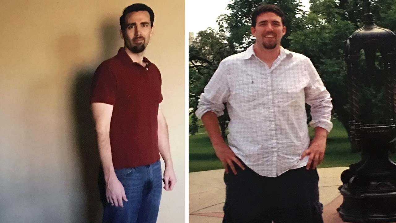 weight loss clinic nyc patient story andrew 01