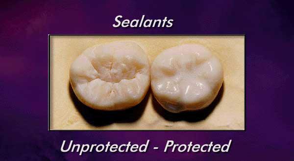 Image result for dental sealants