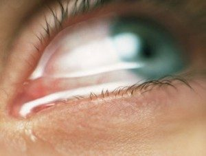 Боязнь света признаки какой болезни