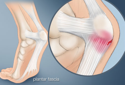apa itu plantar fasciitis - sakit tumit kaki