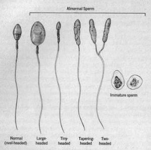 Teratozoospermia