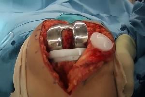 pembedahan lutut