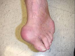 gout 1