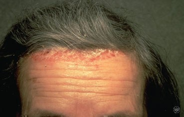 Charlotte NC Top Dermatologist Discusses Scalp Psoriasis