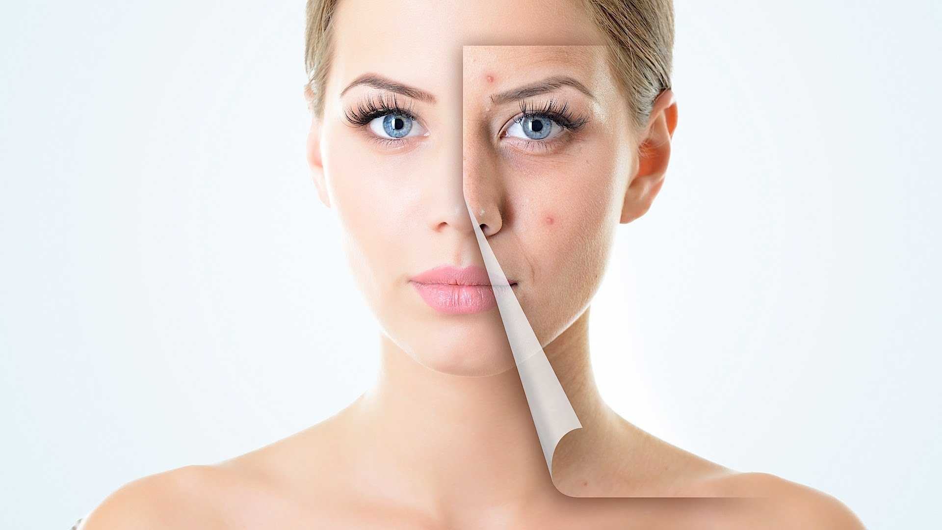 Acne Scaring Treatment