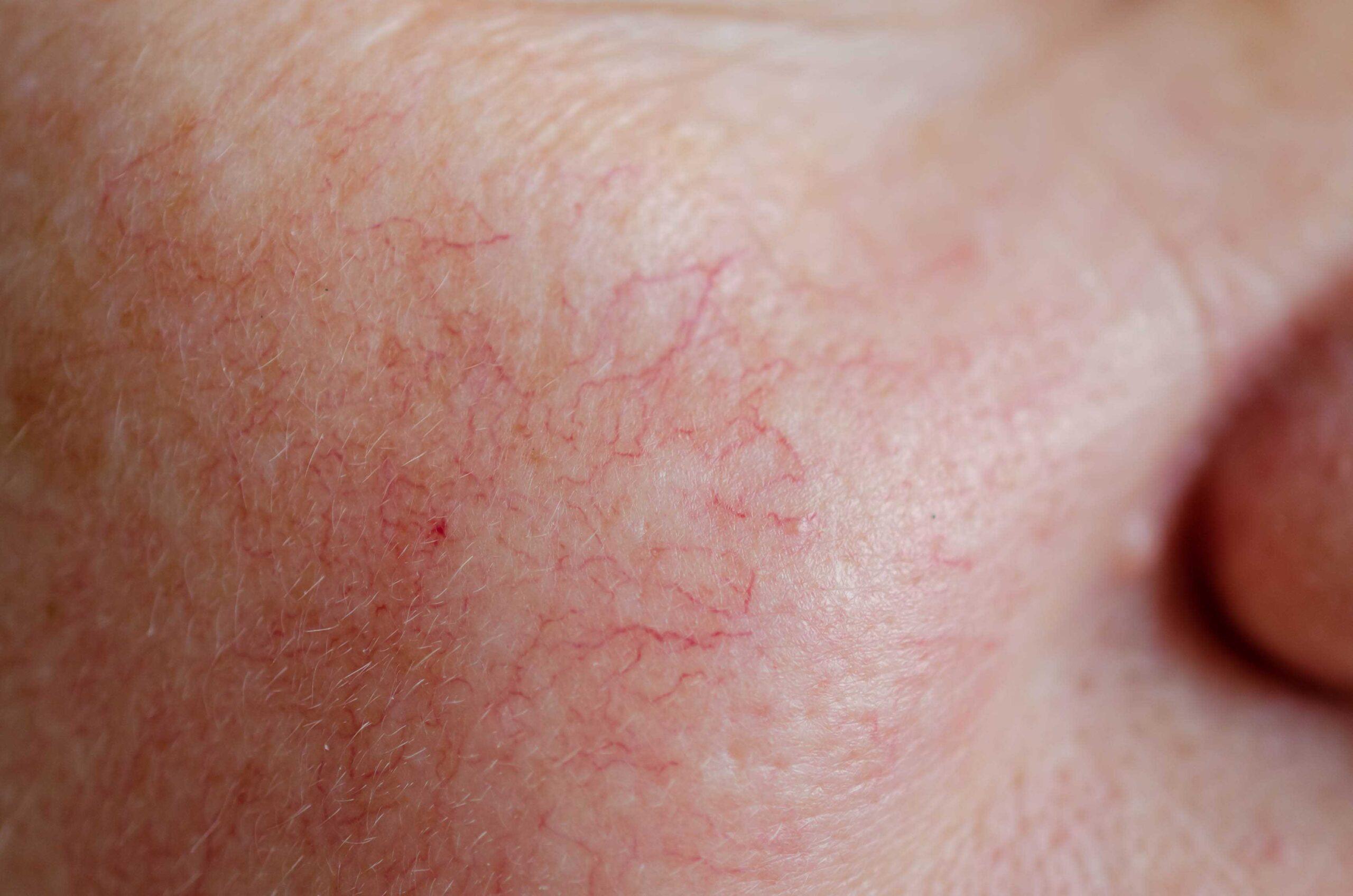 Dilated Capillaries Treatment