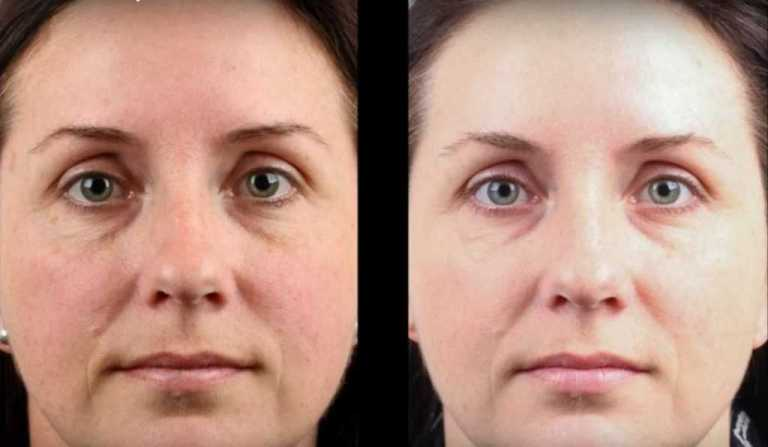 freckle-removal-before-after-1024x596-compressed
