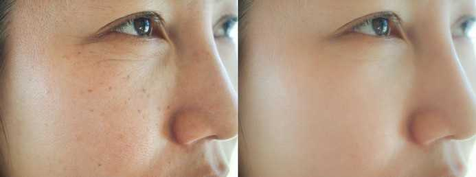 image-before-after-spot-melasma-260nw-1466454602-compressed