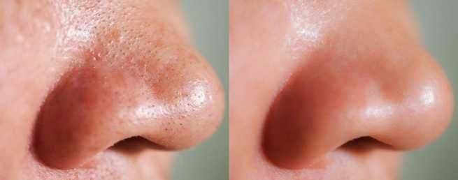 image-closeup-before-after-treatment-260nw-1448820872-compressed