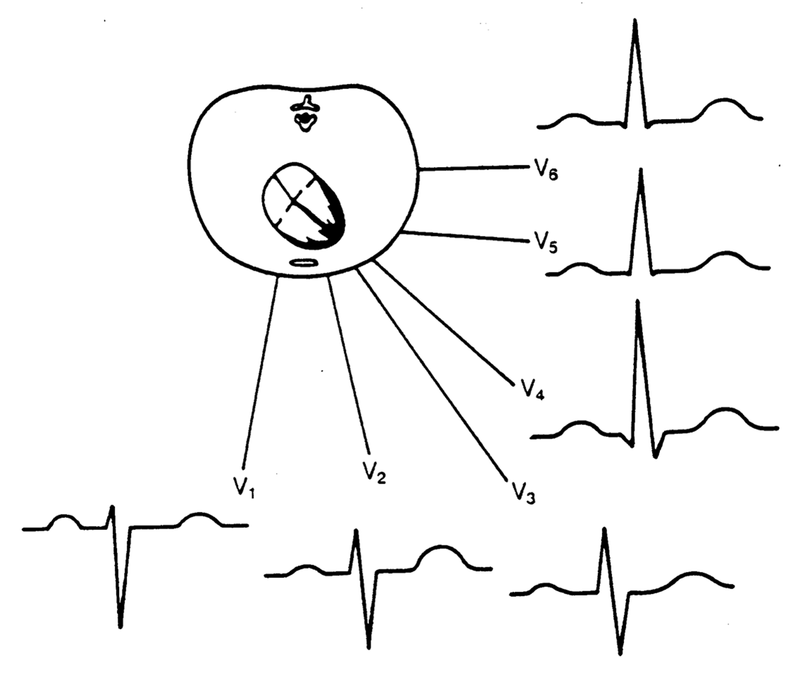 Ekg Leads And Heart Location