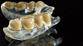 Еластични протези Термосенс еластична протеза Варна зъботехник варна поставяне изработка